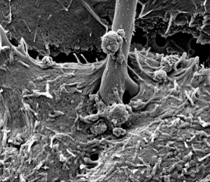 Yeast invasion of epithelial cell
