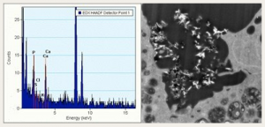 Spectrum verifying the composition of hydroxyapatite particles