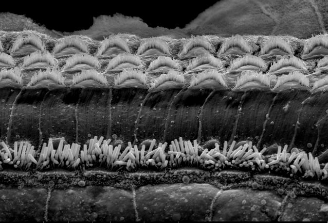 Organ of corti in the cochlea